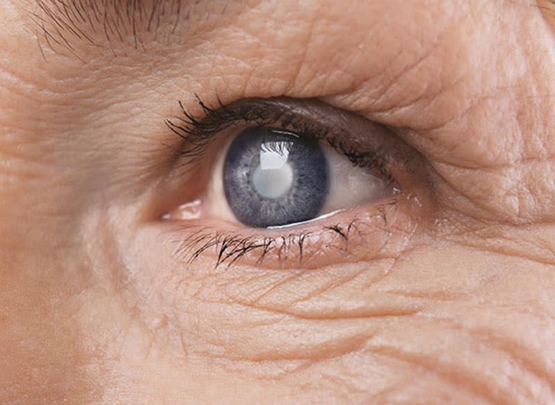 Катаракта - Закарпатський центр зору та Закарпатський центр мікрохірургії ока