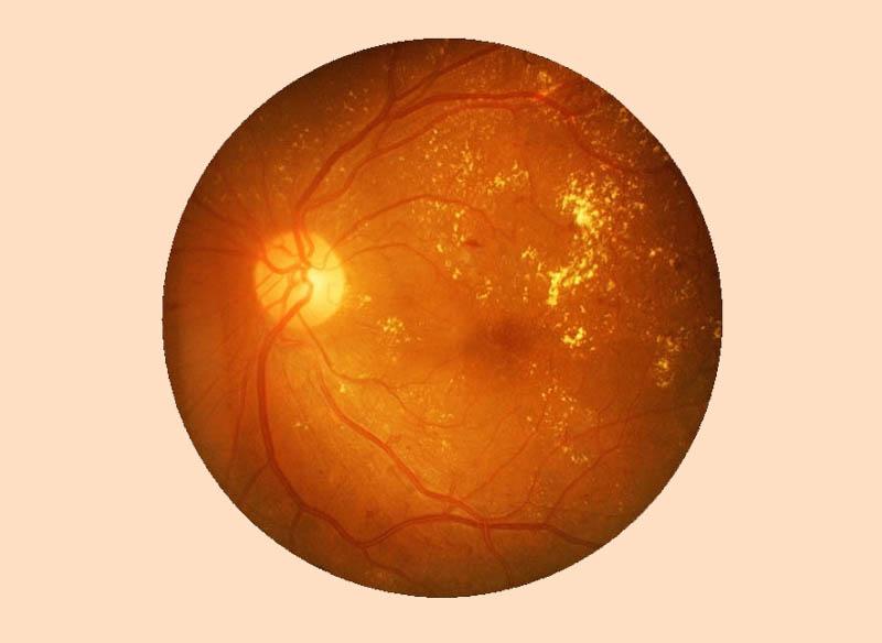 Діабетична ретинопатія - Закарпатський центр зору та Закарпатський центр мікрохірургії ока