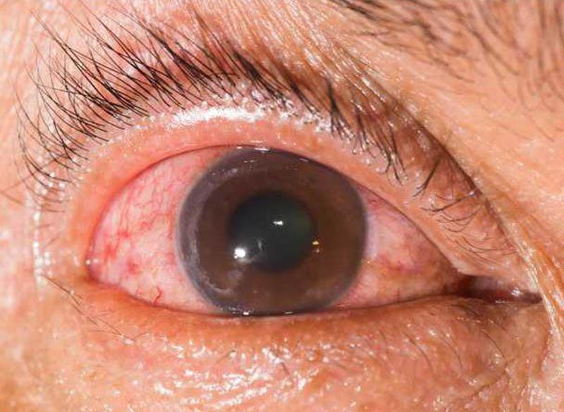 Глаукома - Закарпатський центр зору та Закарпатський центр мікрохірургії ока