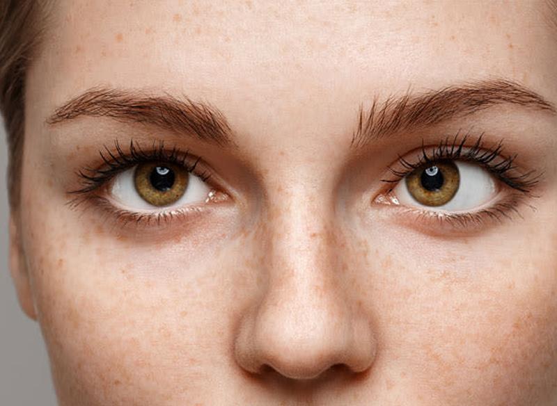 Косоокість - Закарпатський центр зору та Закарпатський центр мікрохірургії ока