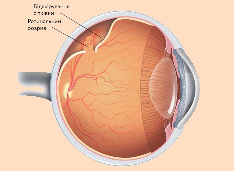 Відшарування сітківки - Закарпатський центр зору та Закарпатський центр мікрохірургії ока